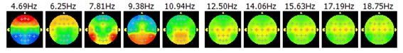 脳波可視化
